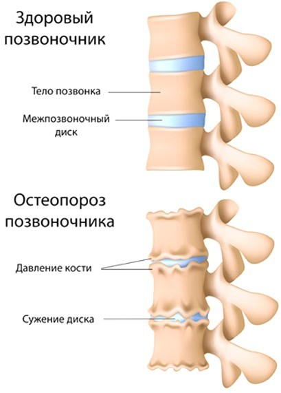 64419 7 - Набор «Здоровье ваших костей»